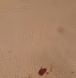 Signature Programs: Vesicles and conidia of Calonectria pseudonaviculata, the causal agent of boxwood blight; Photo Credit: E. Bush